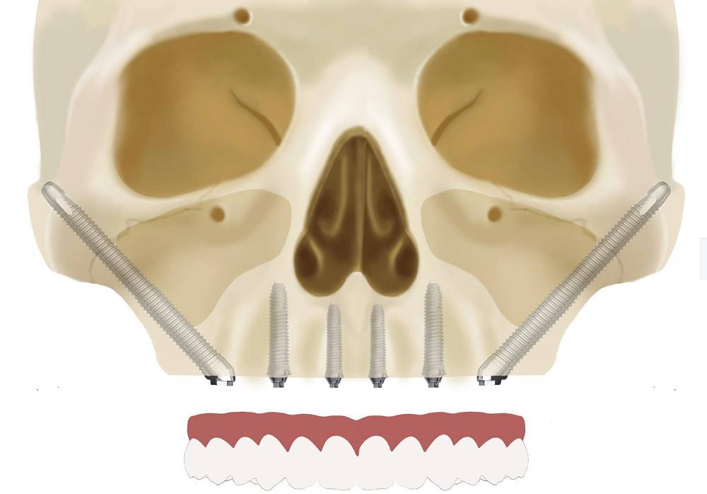 Скуловая имплантация — суть метода и подробности технологии