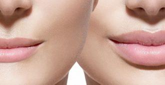 Гиалуроновое увеличение губ