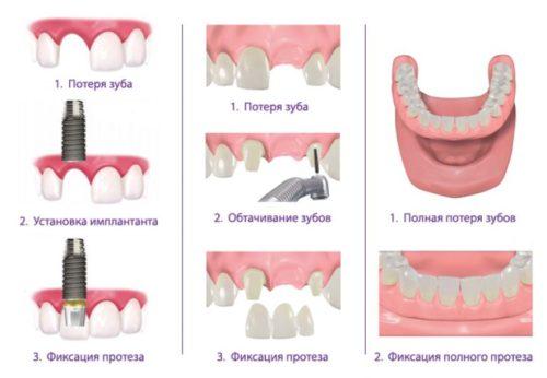 Схема этапов протезирования зубов